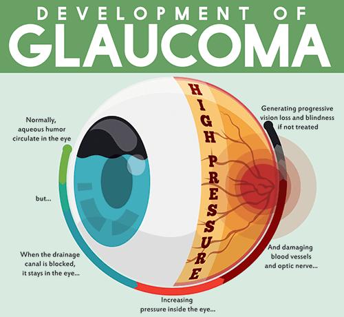 Development of Glaucoma Diagram
